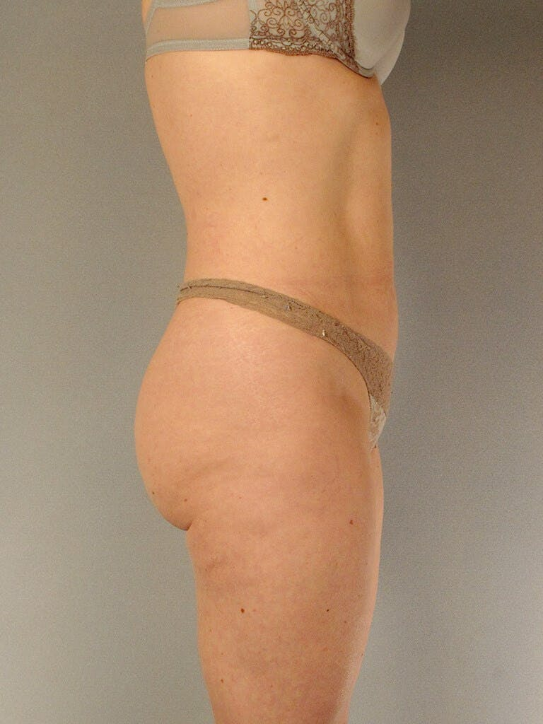 Liposuction Gallery - Patient 20909816 - Image 2