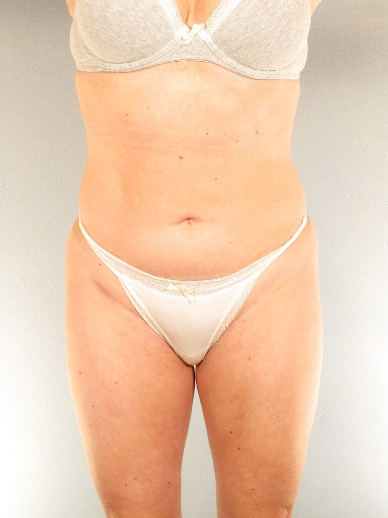 Liposuction Gallery - Patient 20909816 - Image 3