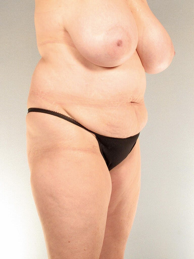 Tummy Tuck Gallery - Patient 20909817 - Image 3