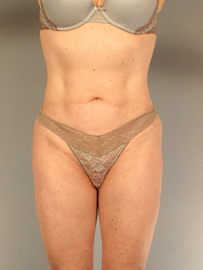 Liposuction Gallery - Patient 20909816 - Image 4