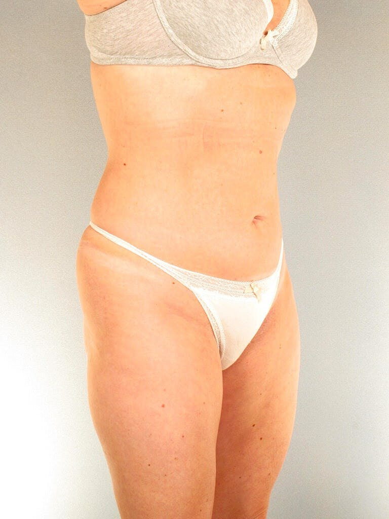Liposuction Gallery - Patient 20909816 - Image 5