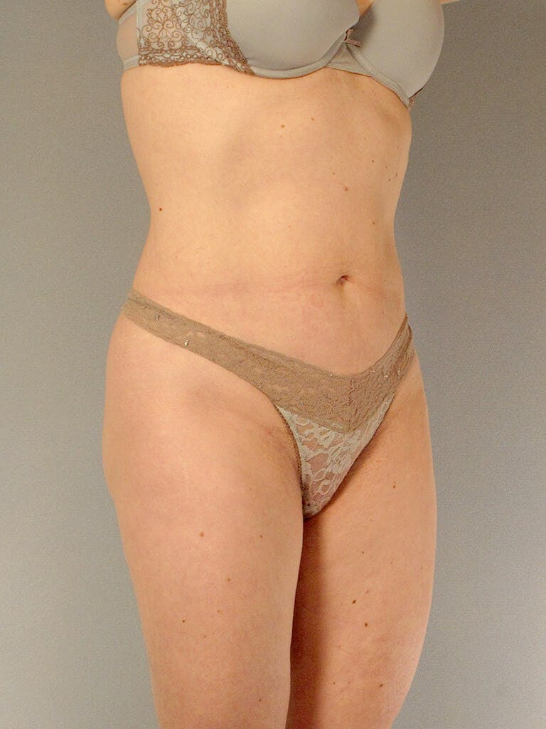 Liposuction Gallery - Patient 20909816 - Image 6