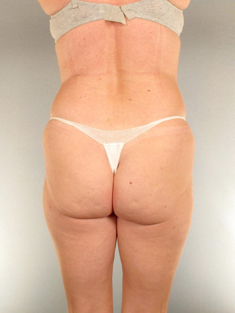 Liposuction Gallery - Patient 20909816 - Image 7