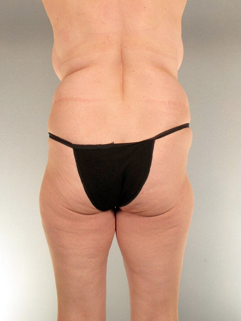 Tummy Tuck Gallery - Patient 20909817 - Image 7