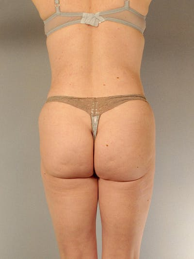 Liposuction Gallery - Patient 20909816 - Image 8