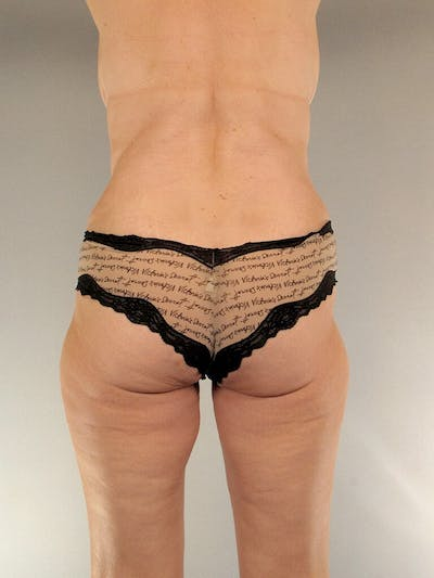 Tummy Tuck Gallery - Patient 20909817 - Image 8