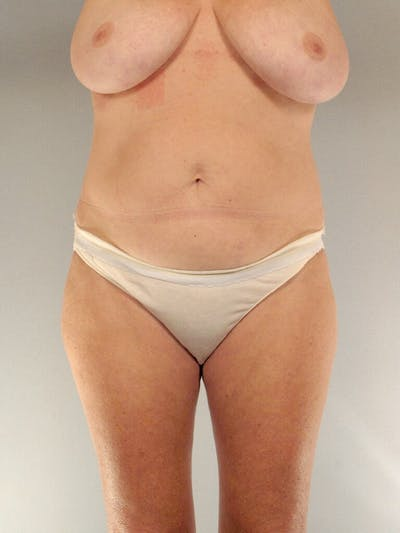 Tummy Tuck Gallery - Patient 20909819 - Image 1