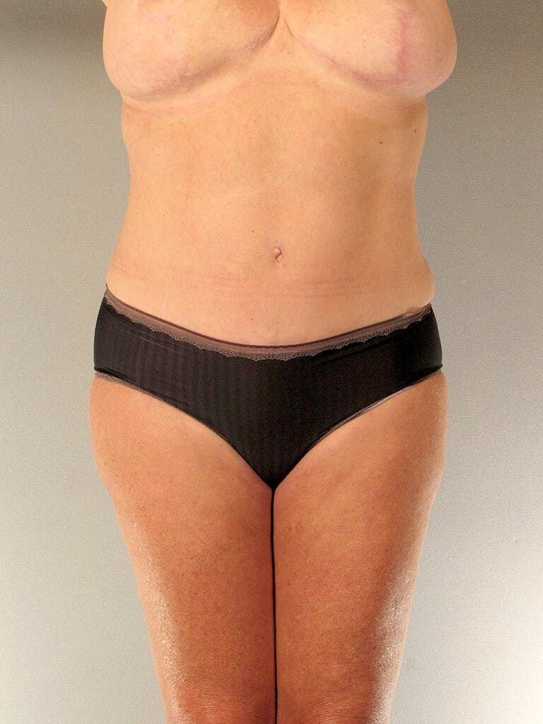 Tummy Tuck Gallery - Patient 20909819 - Image 2
