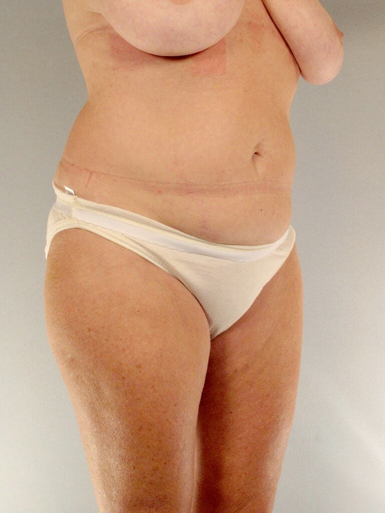 Tummy Tuck Gallery - Patient 20909819 - Image 3