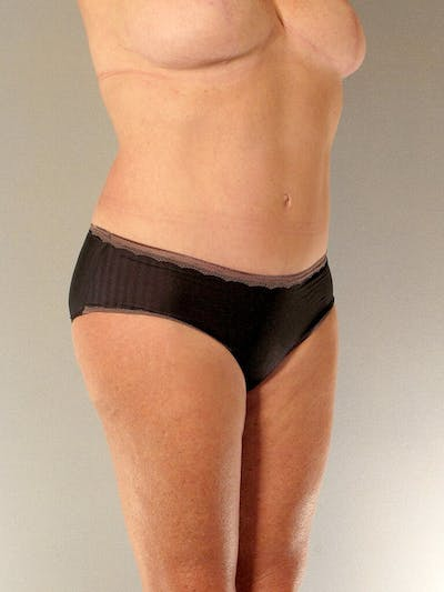 Tummy Tuck Gallery - Patient 20909819 - Image 4