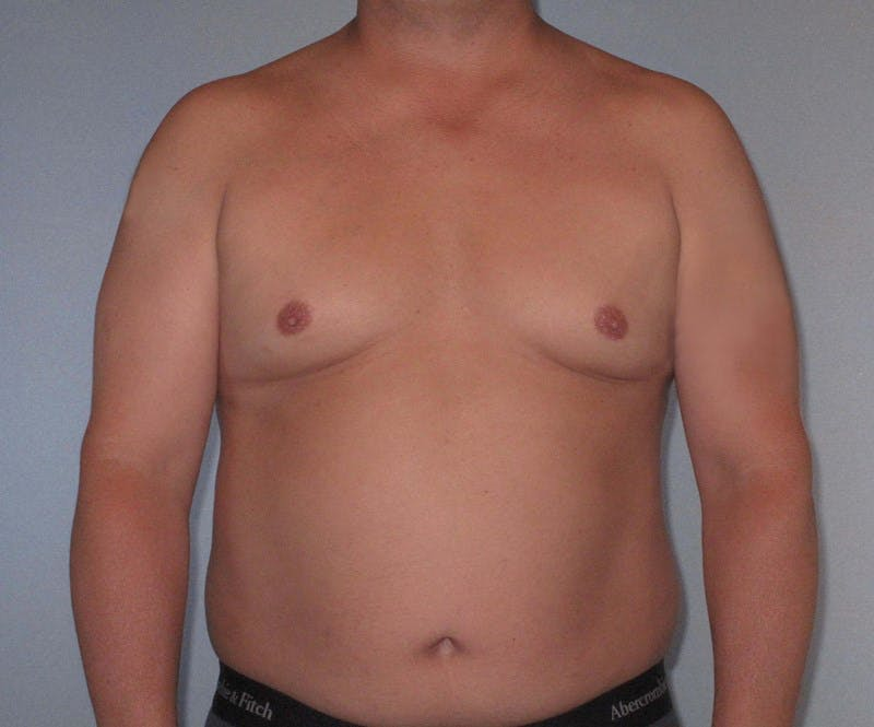 Liposuction Gallery - Patient 20909820 - Image 1