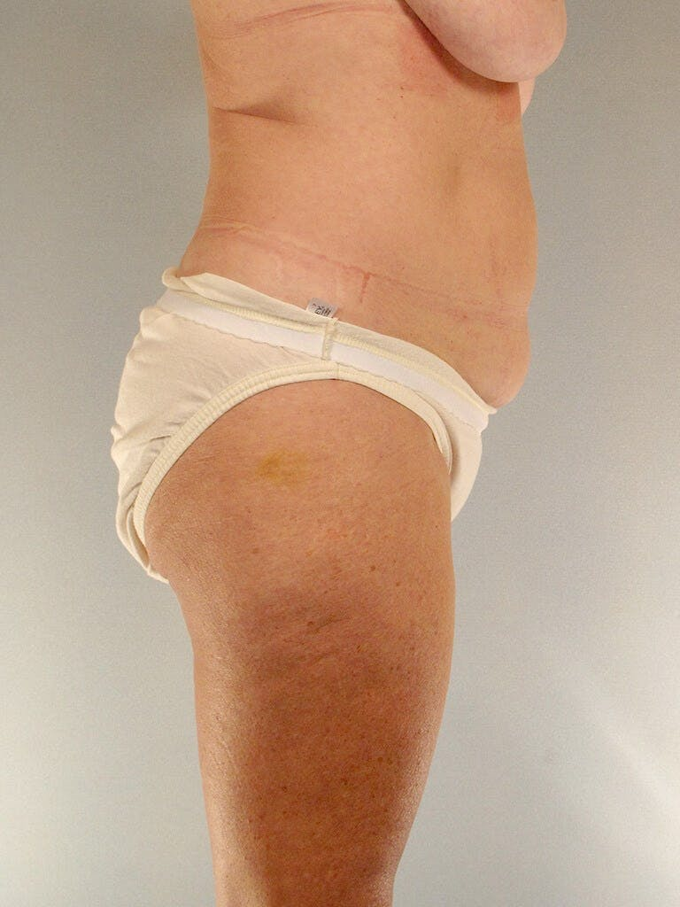 Tummy Tuck Gallery - Patient 20909819 - Image 5