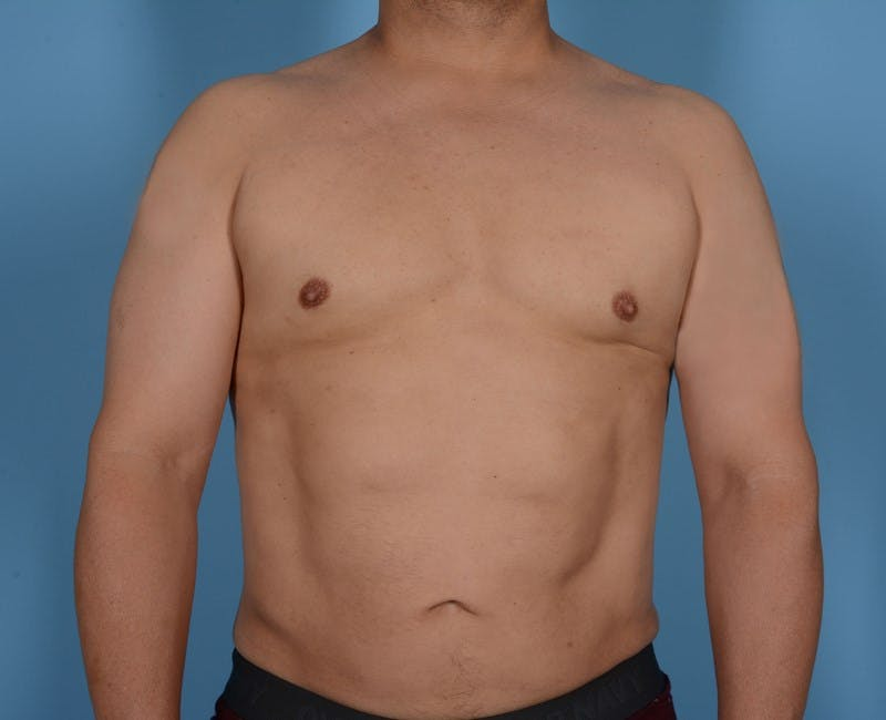 Liposuction Gallery - Patient 20909820 - Image 2