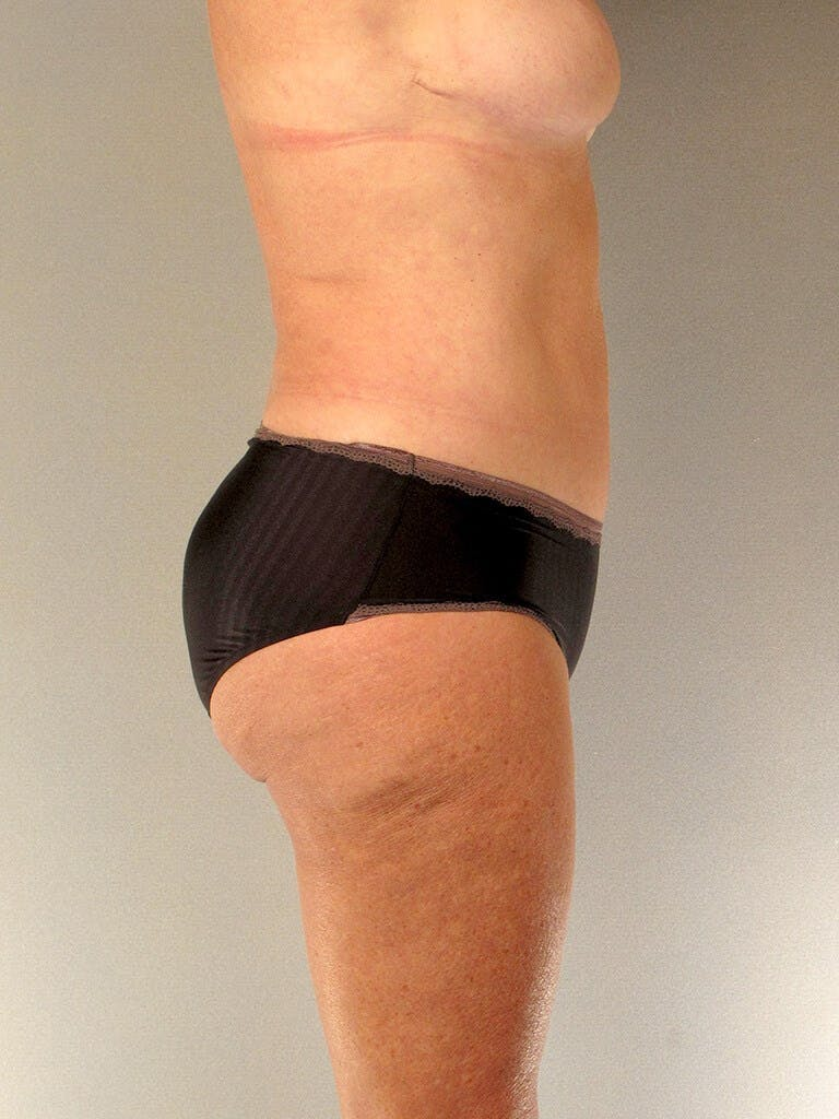 Tummy Tuck Gallery - Patient 20909819 - Image 6