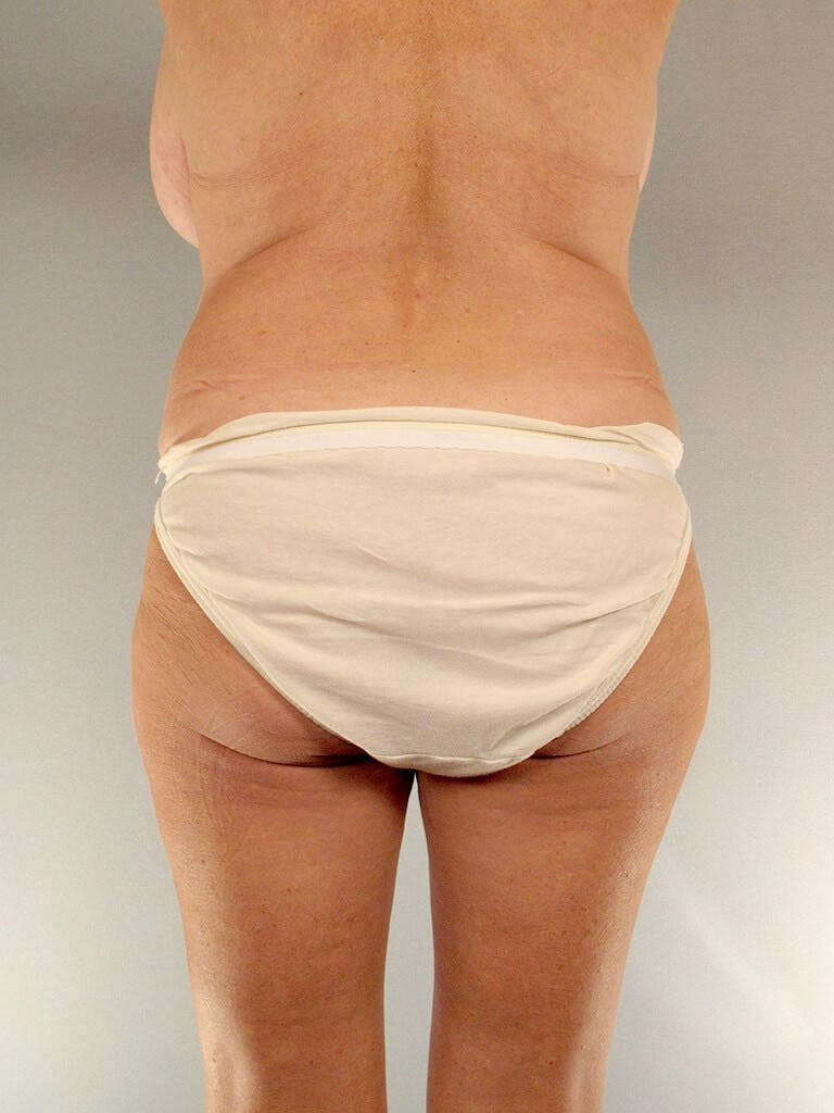 Tummy Tuck Gallery - Patient 20909819 - Image 7