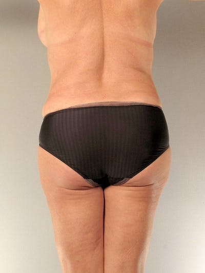 Tummy Tuck Gallery - Patient 20909819 - Image 8