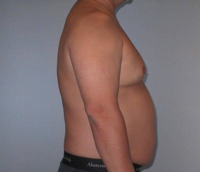 Liposuction Gallery - Patient 20909820 - Image 5