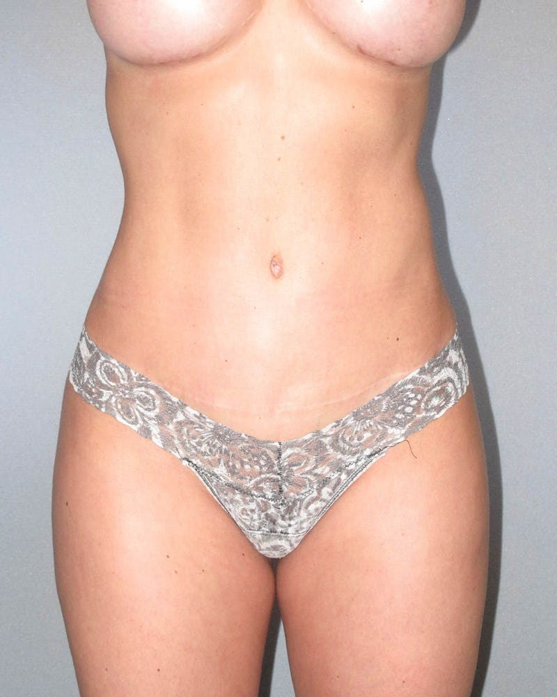 Tummy Tuck Gallery - Patient 20909821 - Image 2