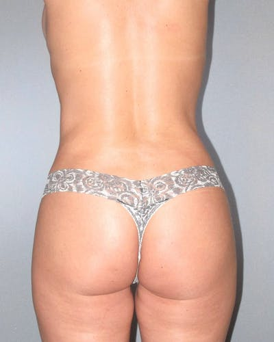 Tummy Tuck Gallery - Patient 20909821 - Image 8