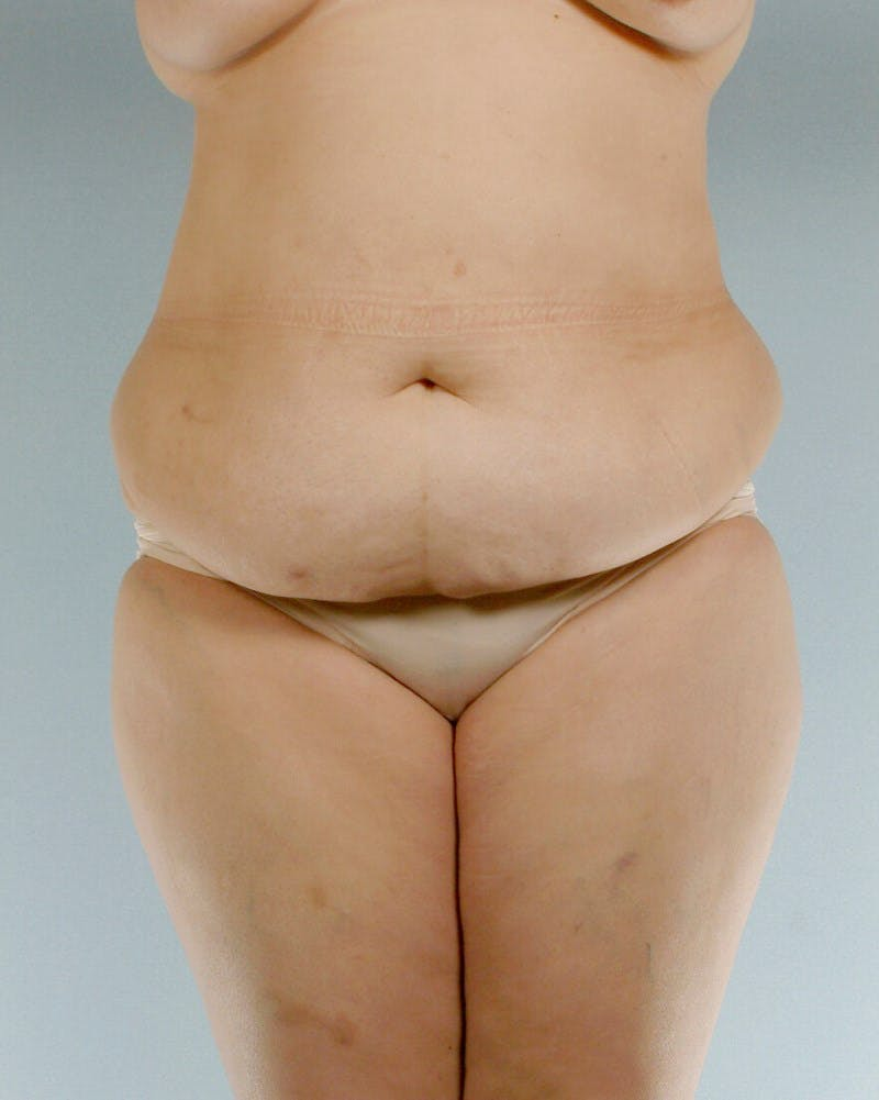 Tummy Tuck Gallery - Patient 20909824 - Image 1