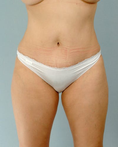Tummy Tuck Gallery - Patient 20909824 - Image 2