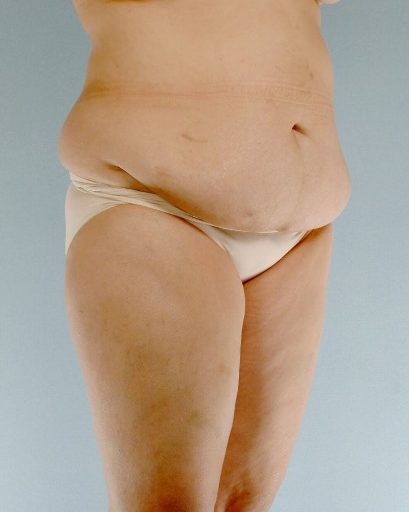 Tummy Tuck Gallery - Patient 20909824 - Image 3