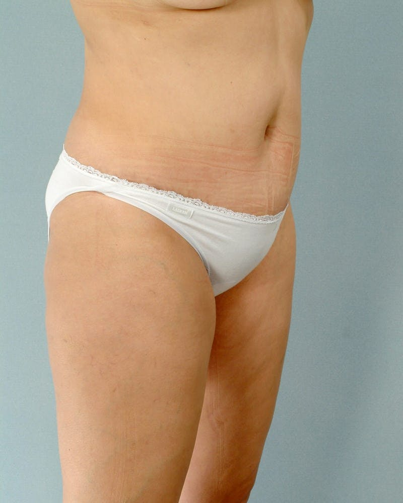 Tummy Tuck Gallery - Patient 20909824 - Image 4