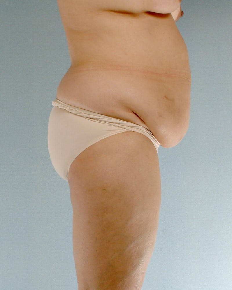Tummy Tuck Gallery - Patient 20909824 - Image 5
