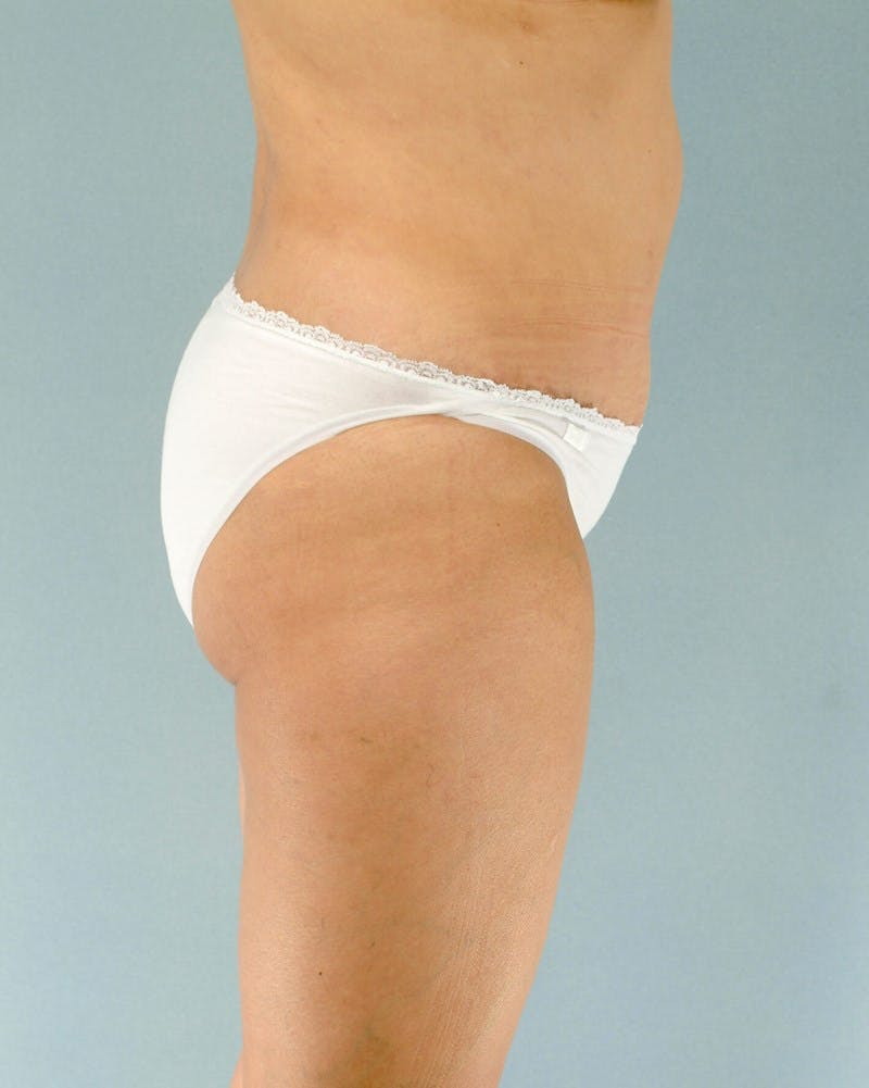Tummy Tuck Gallery - Patient 20909824 - Image 6