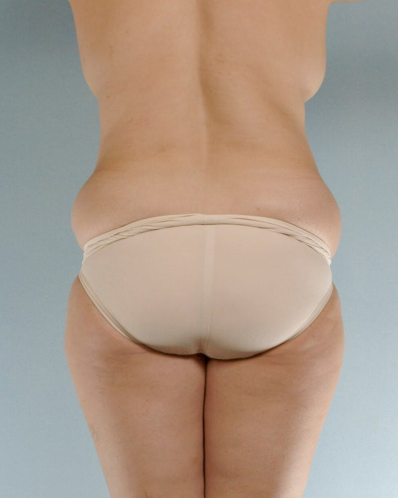 Tummy Tuck Gallery - Patient 20909824 - Image 7
