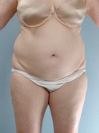 Tummy Tuck Gallery - Patient 20909830 - Image 1