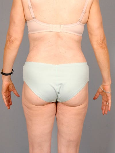 Tummy Tuck Gallery - Patient 20909830 - Image 8