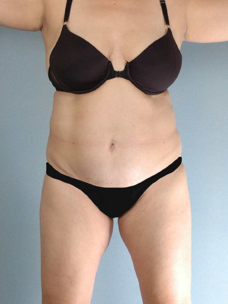 Tummy Tuck Gallery - Patient 20909834 - Image 1