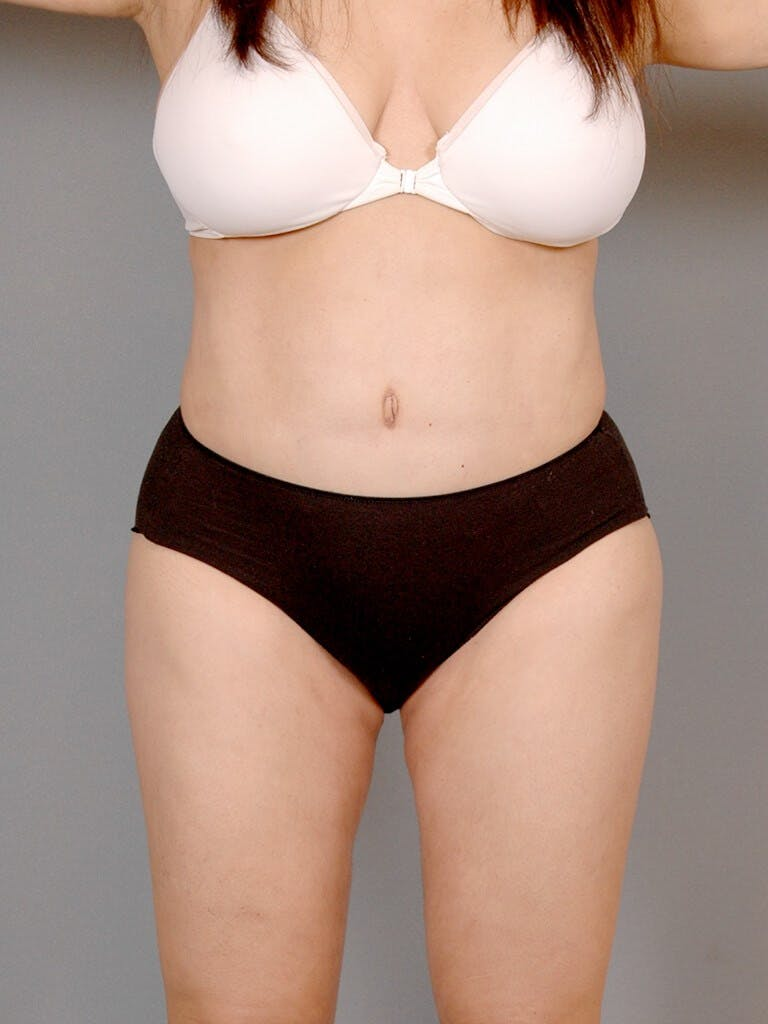 Tummy Tuck Gallery - Patient 20909834 - Image 2