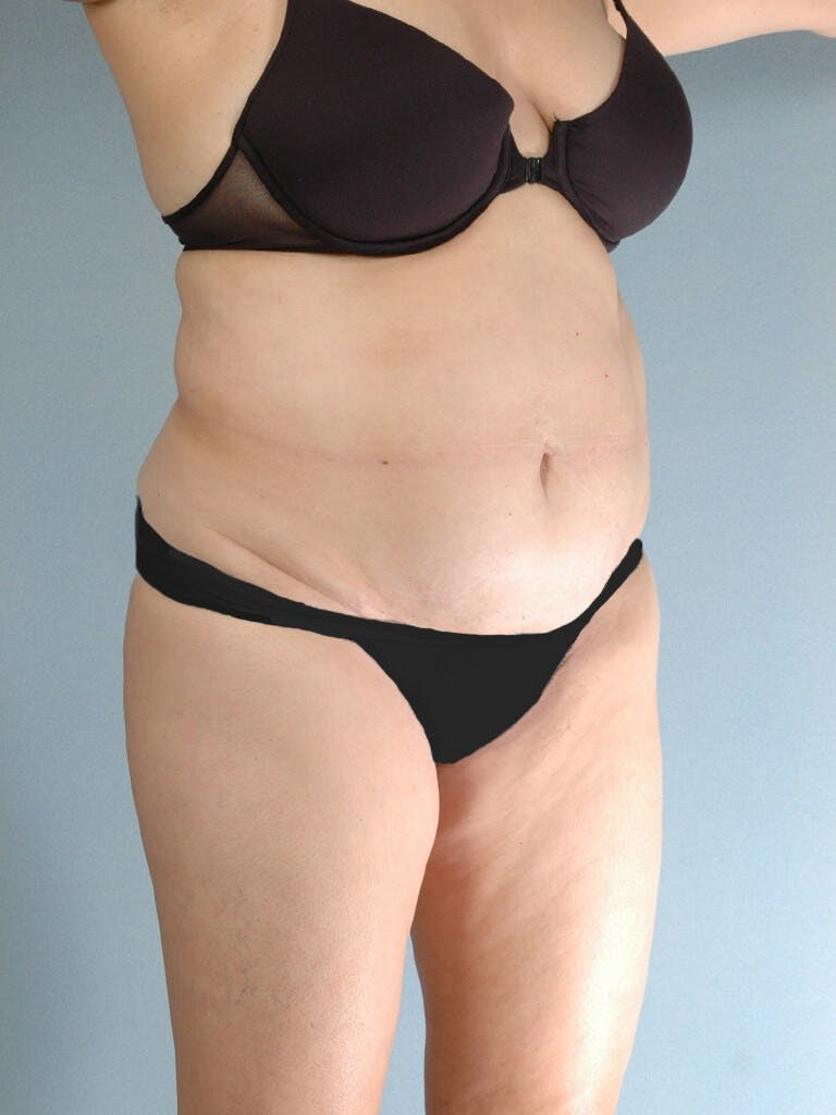Tummy Tuck Gallery - Patient 20909834 - Image 3