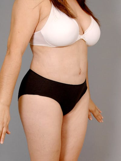 Tummy Tuck Gallery - Patient 20909834 - Image 4