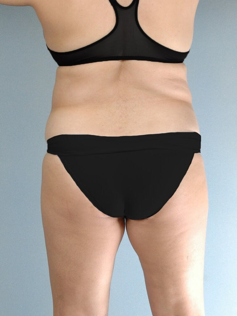 Tummy Tuck Gallery - Patient 20909834 - Image 7
