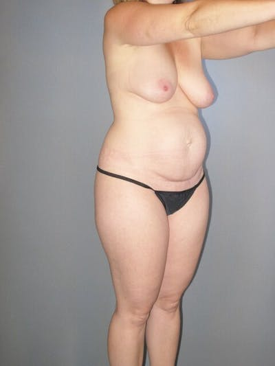 Tummy Tuck Gallery - Patient 20909839 - Image 1