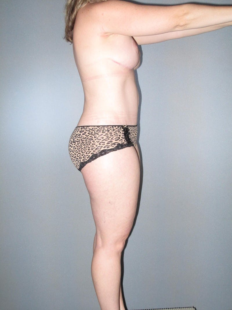 Tummy Tuck Gallery - Patient 20909839 - Image 4