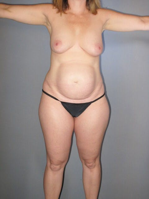 Tummy Tuck Gallery - Patient 20909839 - Image 5
