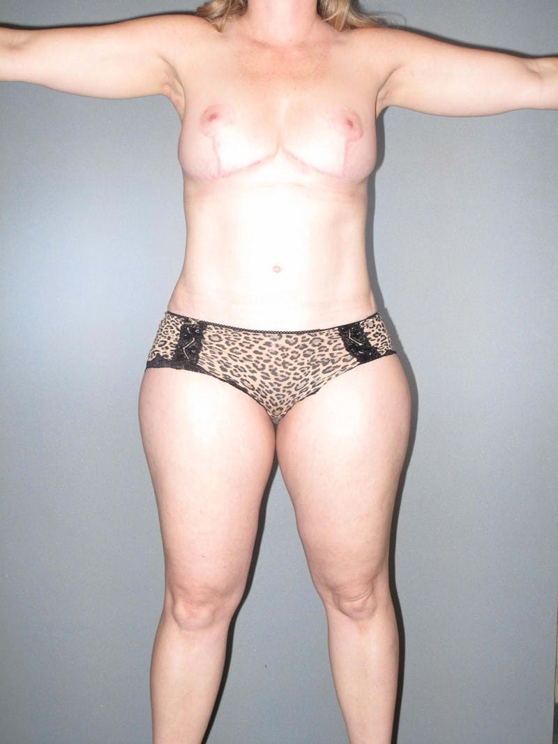 Tummy Tuck Gallery - Patient 20909839 - Image 6