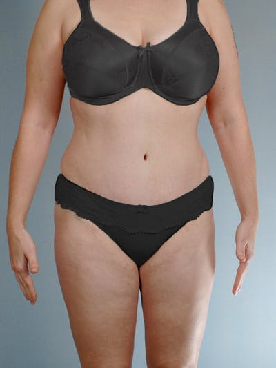 Tummy Tuck Gallery - Patient 20909843 - Image 2