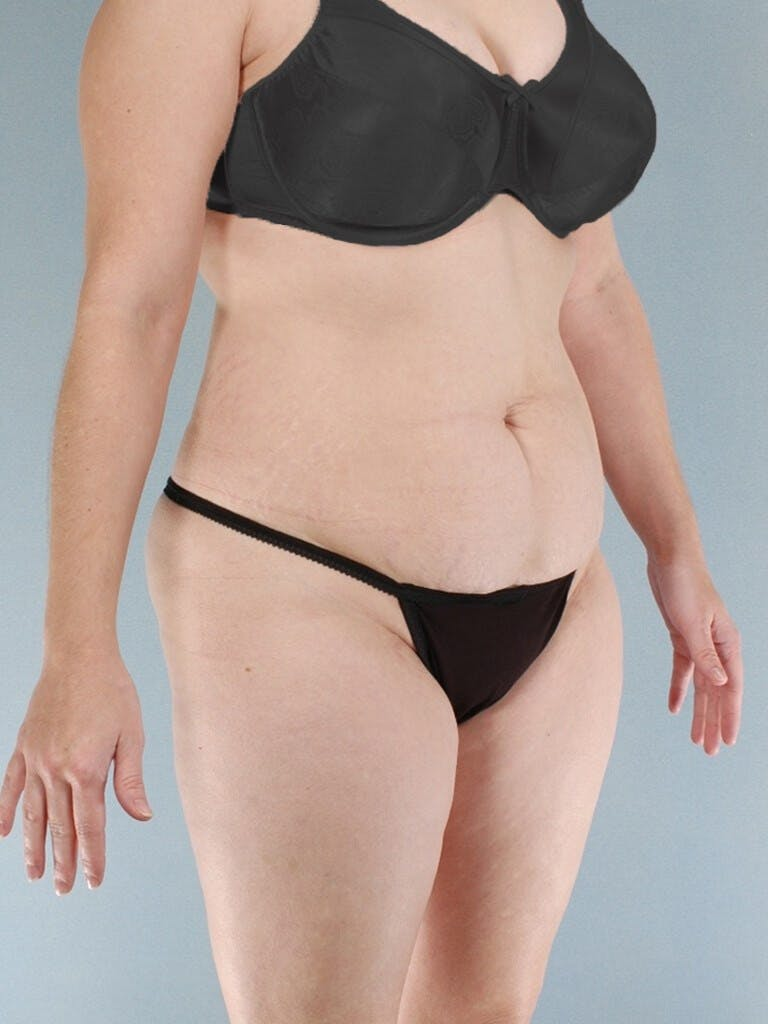 Tummy Tuck Gallery - Patient 20909843 - Image 3