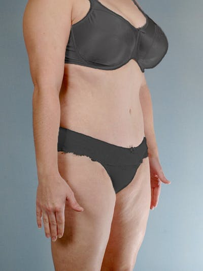 Tummy Tuck Gallery - Patient 20909843 - Image 4