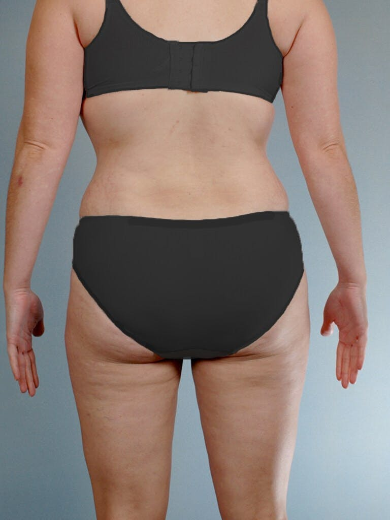 Tummy Tuck Gallery - Patient 20909843 - Image 8