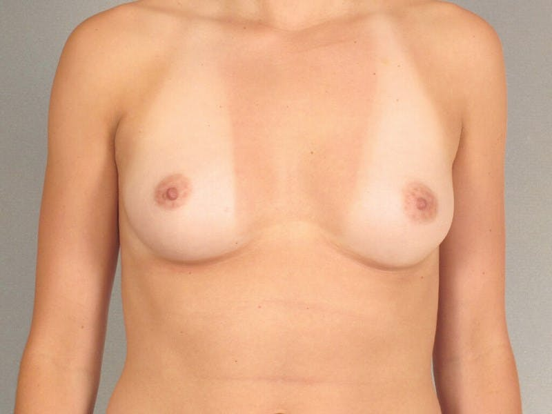 Breast Augmentation Gallery - Patient 20912929 - Image 1