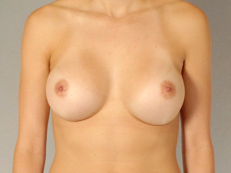 Breast Augmentation Gallery - Patient 20912929 - Image 2