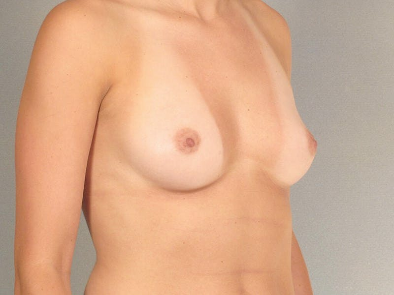 Breast Augmentation Gallery - Patient 20912929 - Image 3