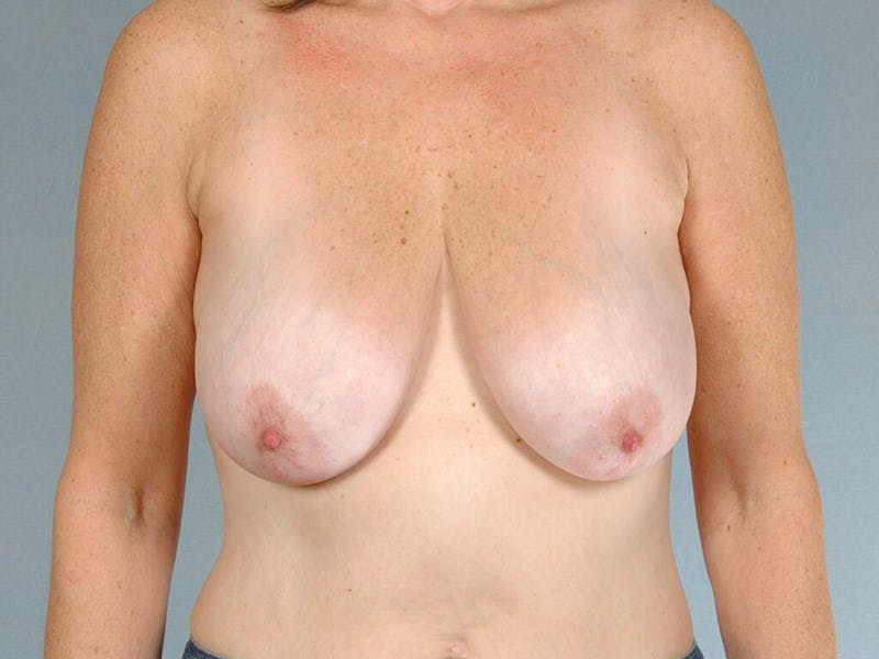 Breast Lift Gallery - Patient 20912930 - Image 1