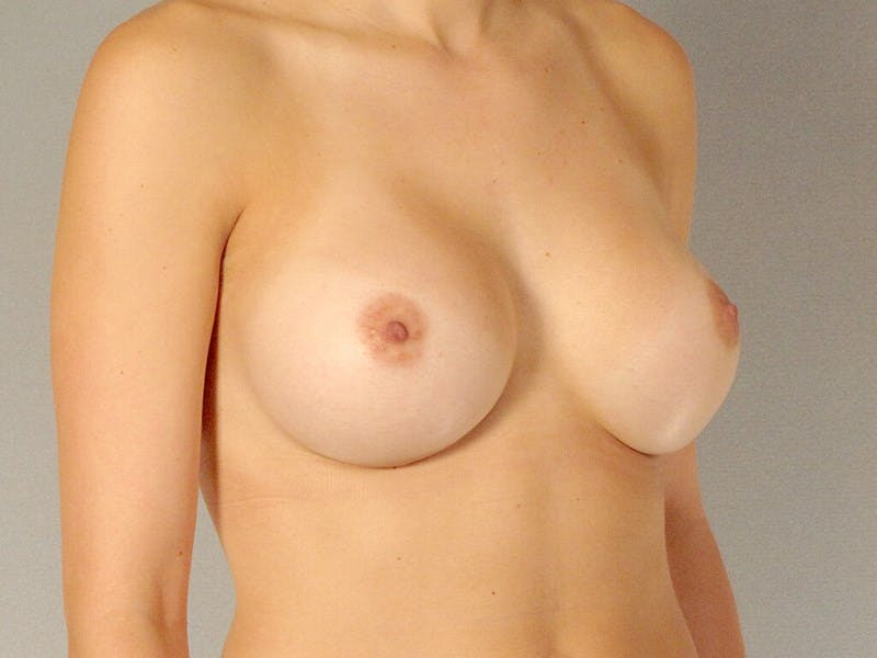 Breast Augmentation Gallery - Patient 20912929 - Image 4